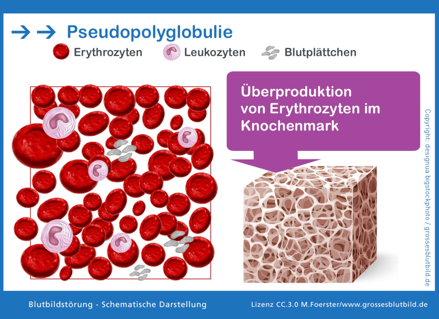 Polyglobulie oder Erythrozytose