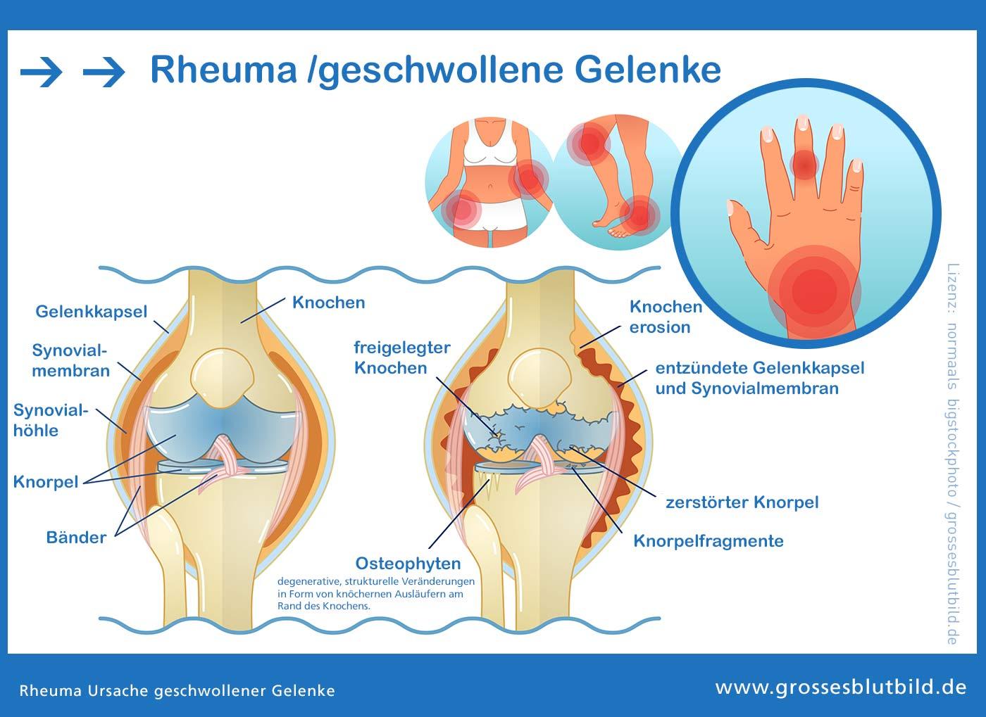 Rheuma Ursache geschwollene Finger Gelenkschwellungen