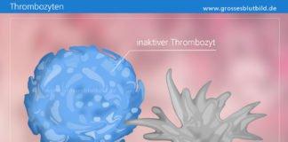 Inaktive und Aktive Thrombozyten