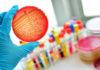 Antikörper auf Streptokokken