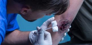 Blutende Wunde versorgen