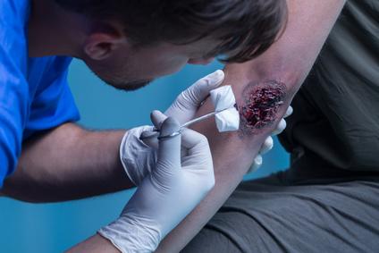 Blutende Wunde versorgen und Blutung stoppen