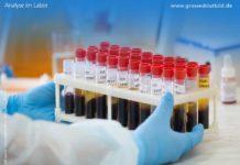 Blutwerte Diagnostik im Labor
