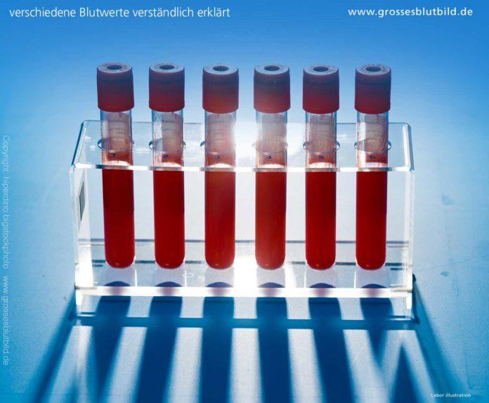 Blutwerte