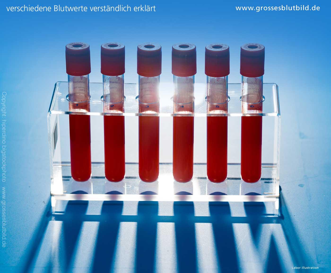 Blutwerte Thrombozyten