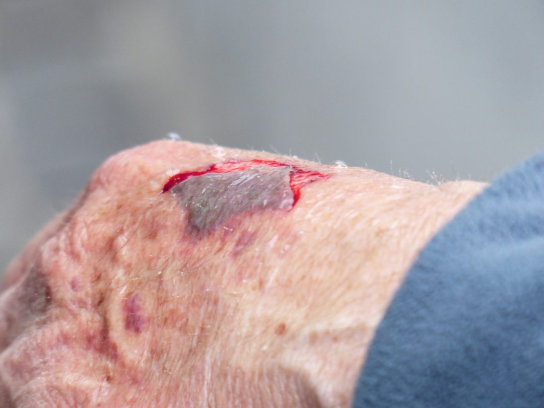 Haut-Blutungen in einer Wunde