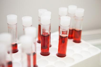 LDL Cholesterin Blutwerte - Bedeutung der Normalwerte | Dr ...