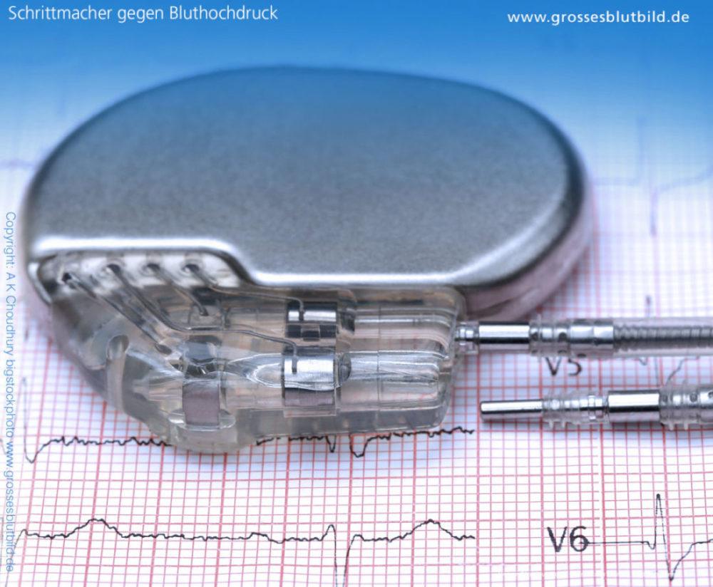 Schrittmacher gegen Bluthochdruck