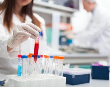 Serologische Blut Tests und Untersuchungen