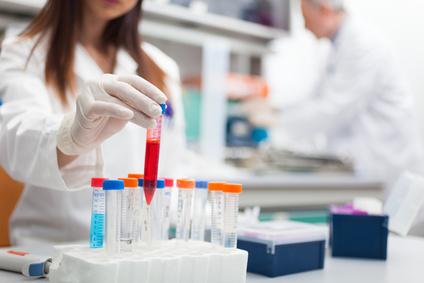 serologische Blutuntersuchungen