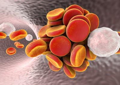 Thrombose Symptome erkennen