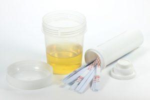nitrit im urin bedeutung ursachen und behandlung. Black Bedroom Furniture Sets. Home Design Ideas