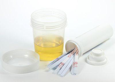 Urin testen