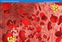 Cholesterin Blutwerte niedrig